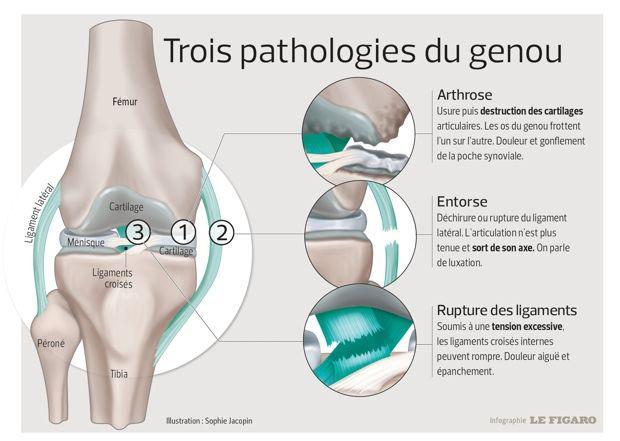 Arthrose du genou : comment se prévenir ?