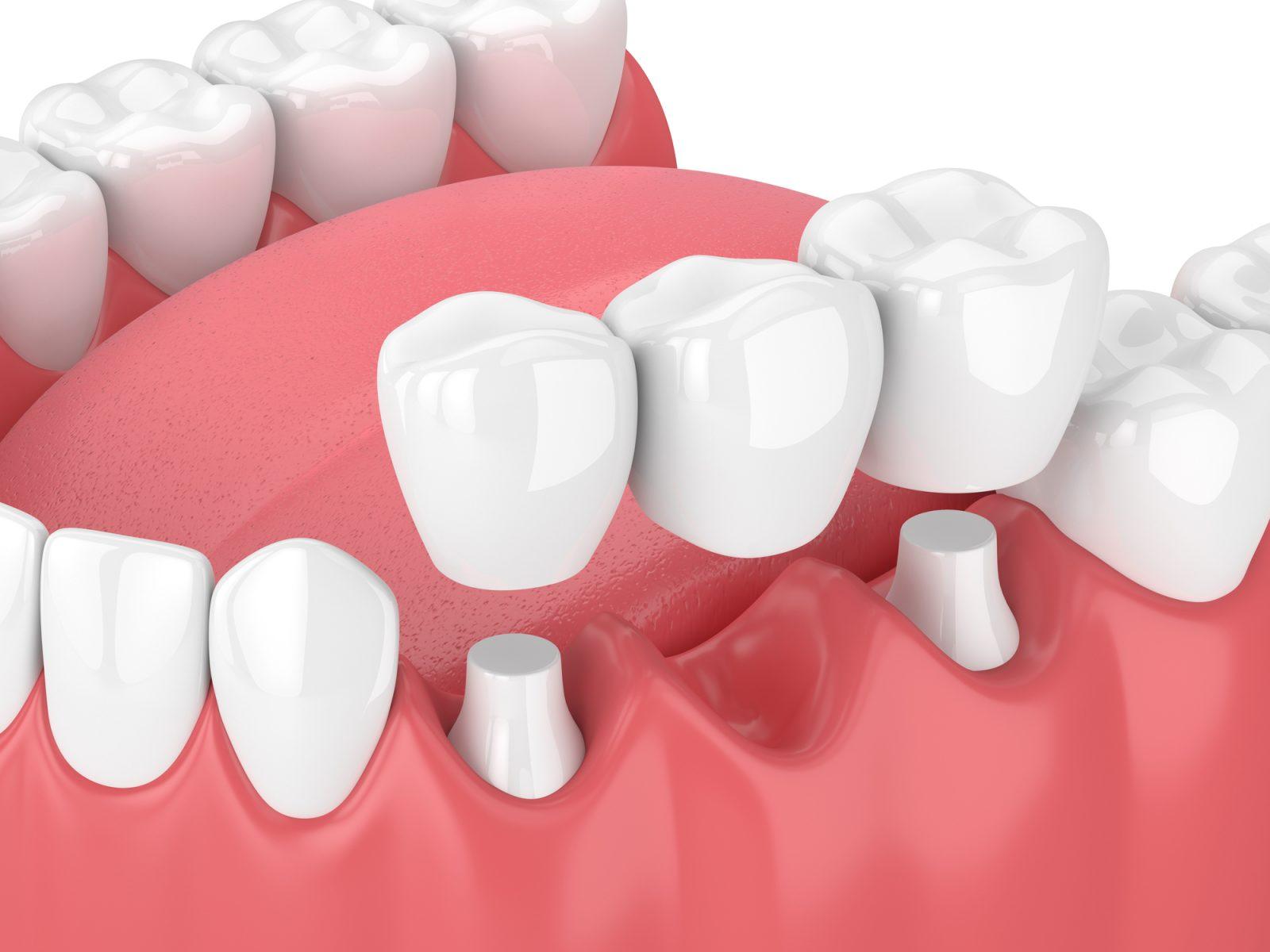 Implant dentaire Lyon : quels sont les inconvénient de cette méthode ?